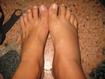 Normal foot   fat foot