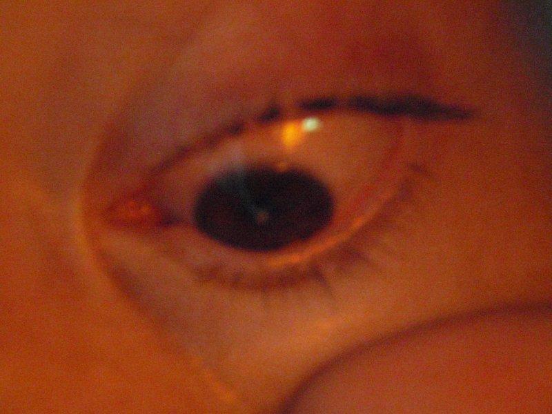 a white dot on my pupil
