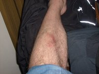 injury from little accident on bicycle