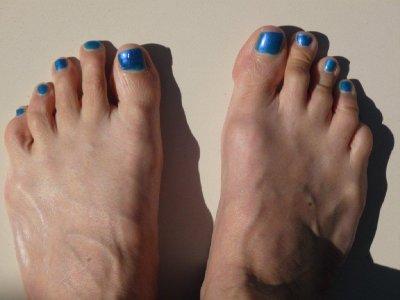 Karen's very blue toes
