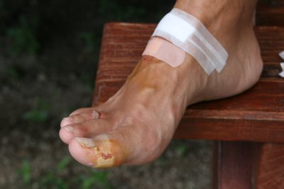 Battered Foot