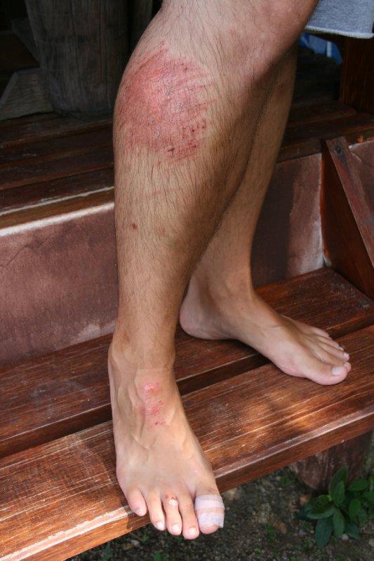 Oozing Legs Scrape