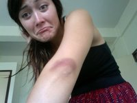 My battle wound from elbow punches at Muay Thai. No pain, no gain!