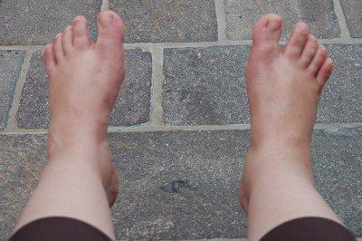 Pied gauche normal - pied droit = entorse!