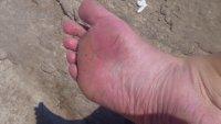 168_Croati..kes_in_foot.jpg