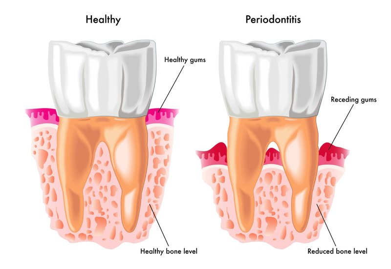 Implant dentistry san diego