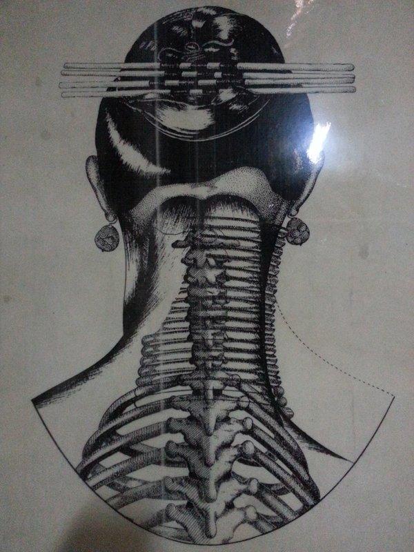 Effect of ring neck on Karen women's neck