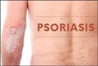 Siddha treatment for Psoriasis Chennai | Herbal Health Care