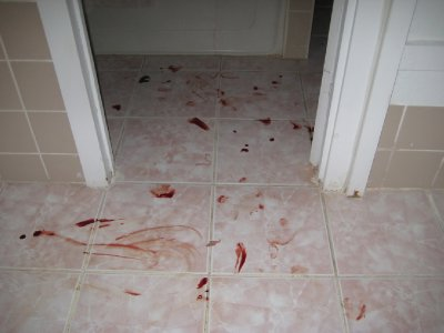 My blood all over the Bathroom Floor after slicing open my toe