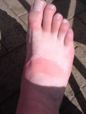 My Burnt Foot