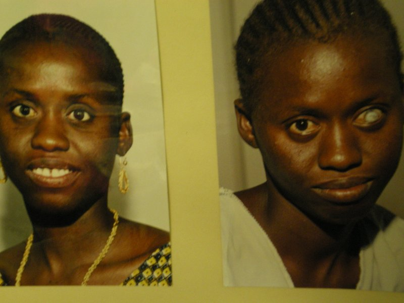 Before and after eye removal and prosthesis