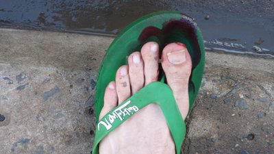 Bloodied toe!