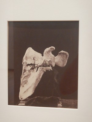 Left Scapula, Showing a Gunshot Fracture Nearly Parallel with the Spine of the Scapula, with Two Fragments of a Conoidal Musket Ball, William Bell, 1865; Bell was head of the photography department at the Army Medical Museum