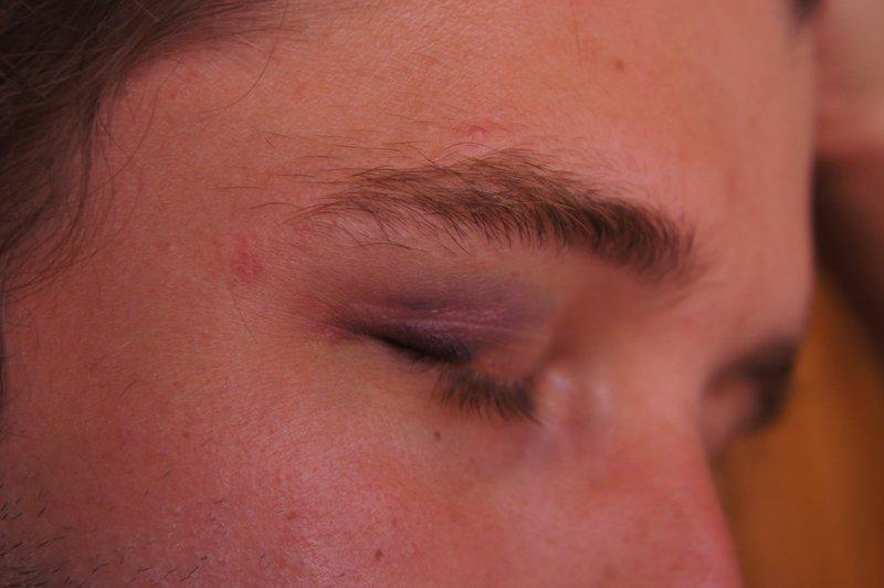 Bruise Pt Deux