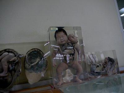 Pickled_Babies_2.jpg