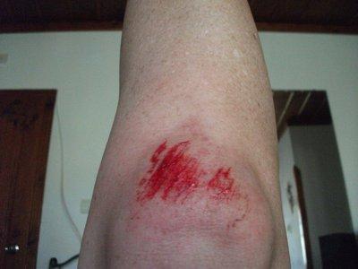 hiking_wound.jpg