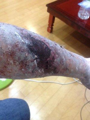 Zombie Arm!!