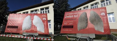 Before/after artificial lung installation near Krakow