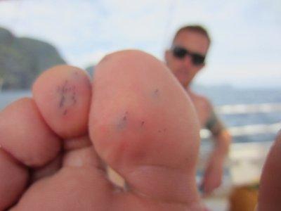 Sea urchin sting