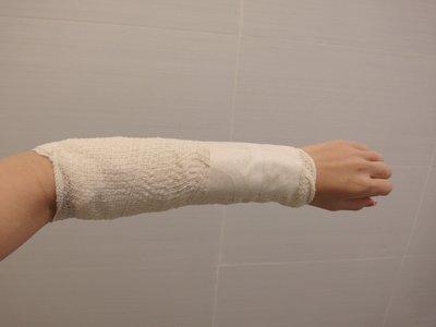 Bandaged_arm.jpg