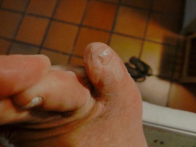 Blisters on my little toe