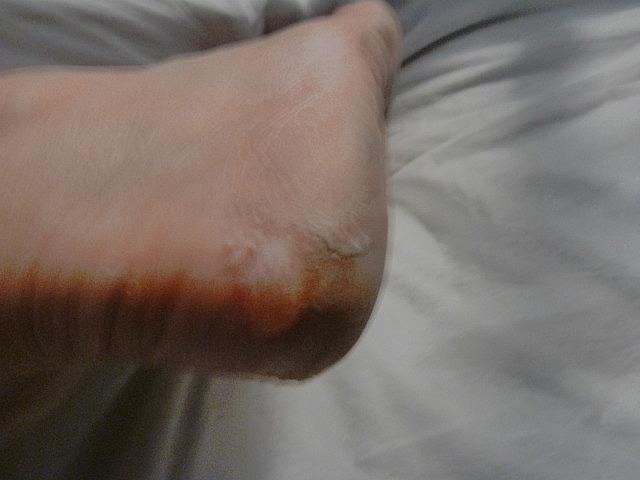 New massive blister