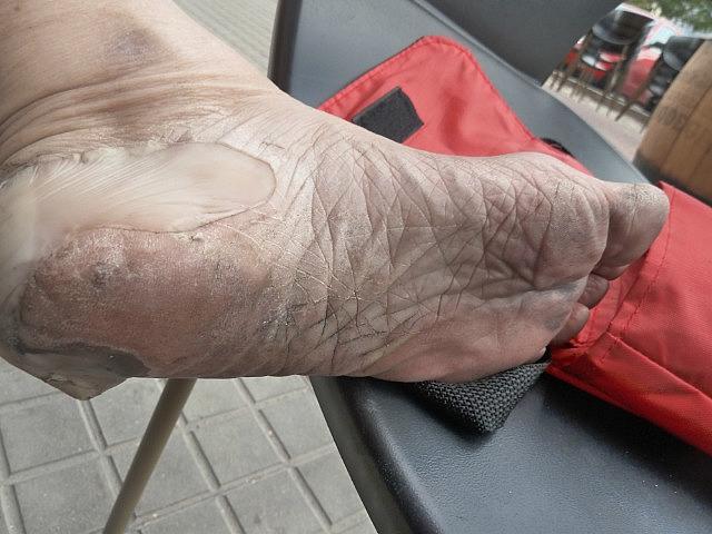 Compeed blister bandaids savd my feet
