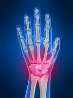 Houston Hand Surgeon